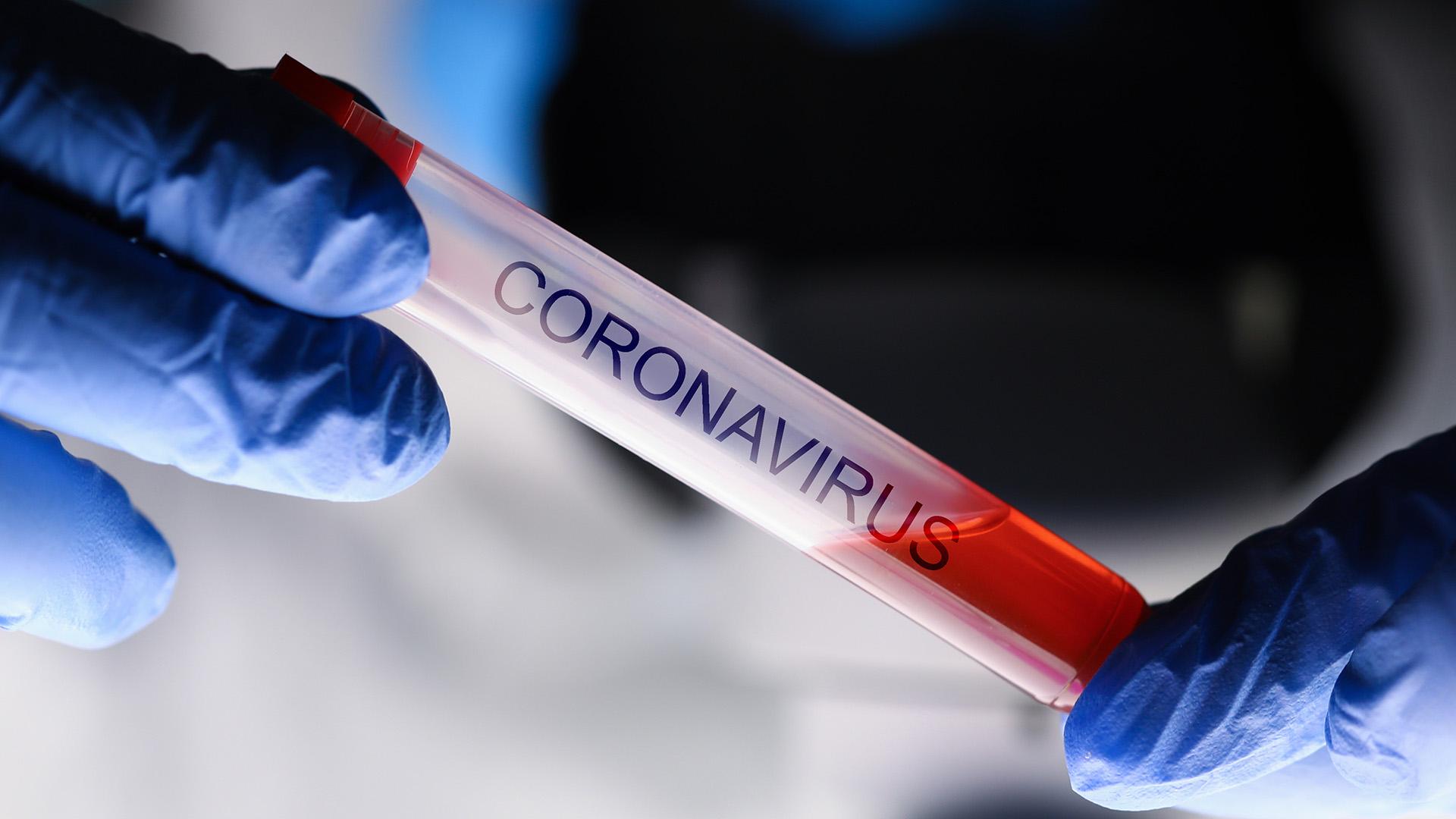 20kw10_Coronavirus_318626682